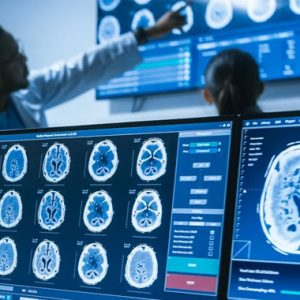 Critical Flaws Reported in Philips Vue PACS Medical Imaging Systems